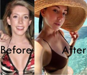 katherine-ryan-before-after-surgery-skin-cancer