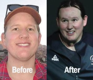 laurel-hubbard-before-and-after-as-a-man-surgery